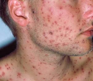 Aids macchie sulla pelle foto 33