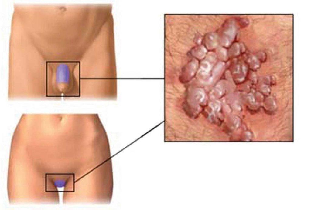 Conseguenze del papilloma virus nell uomo