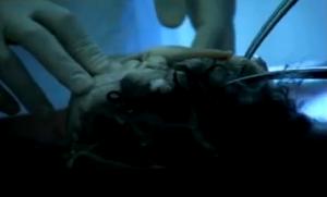 immagine del feto gemello che stava crescendo in Alamjan