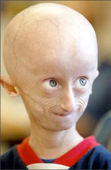 progeria