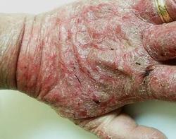 Malade du psoriasis dans les images
