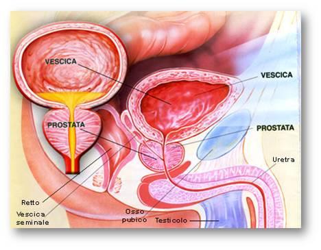 Rozshifrovka prostatica analіz - Prostata massaggio Belyaevo