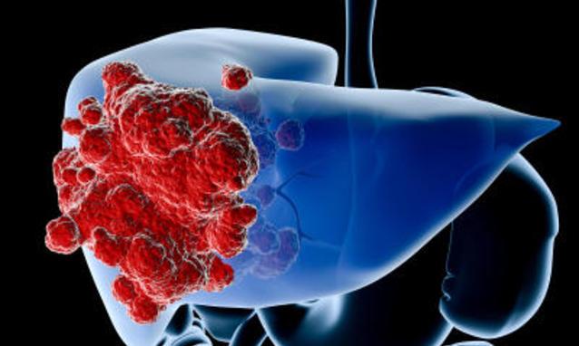 dove curare metastasi al fegato