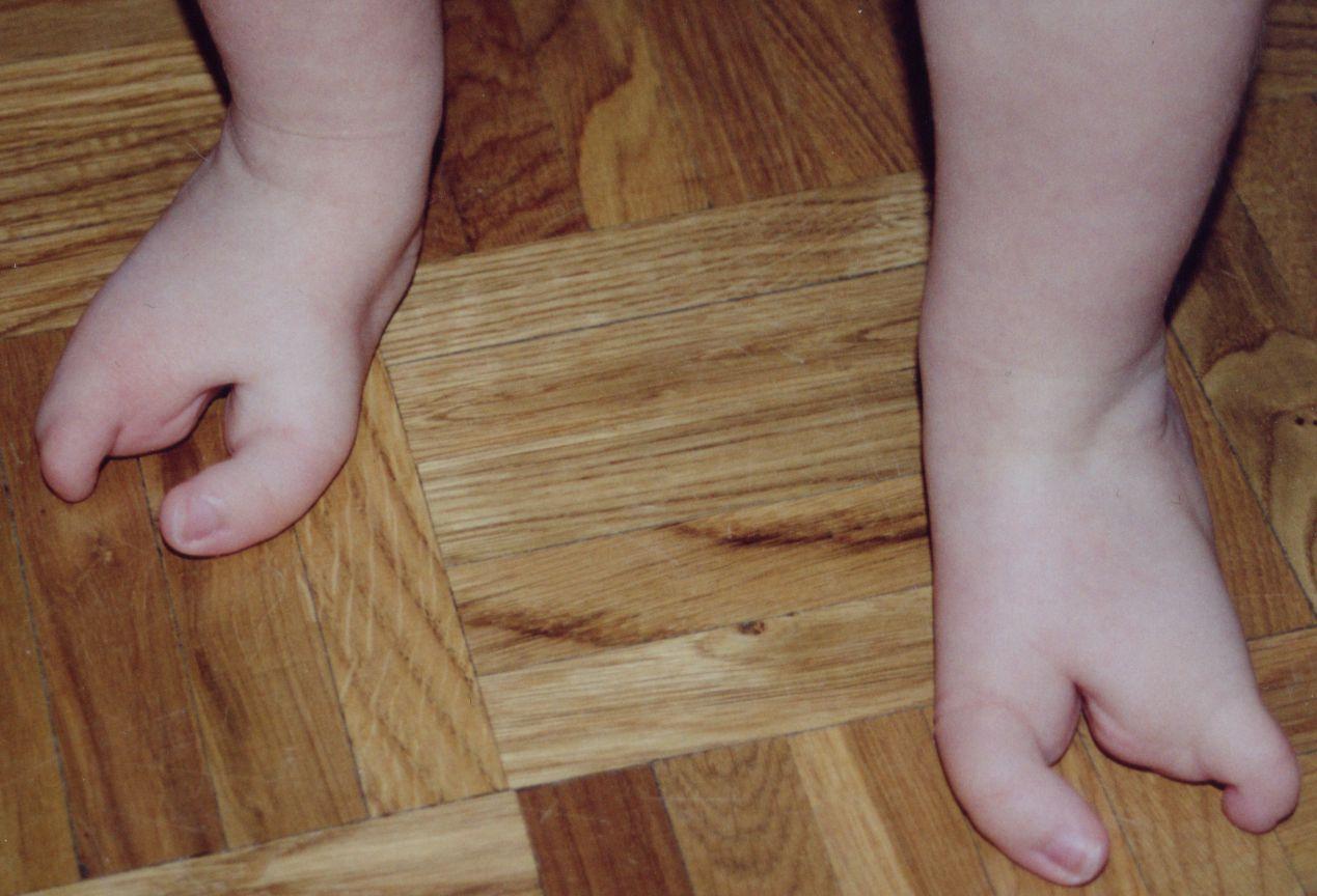 Ectrodattilia: una malattia genetica che trasforma mani e