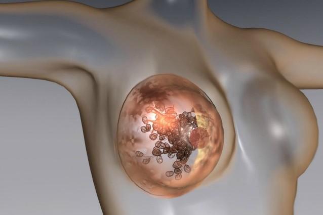Recensioni vitaprost e prostatilen - Cancro alla prostata e il sesso anale