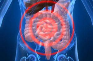 tumore colon retto