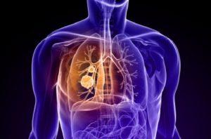 tumore polmoni
