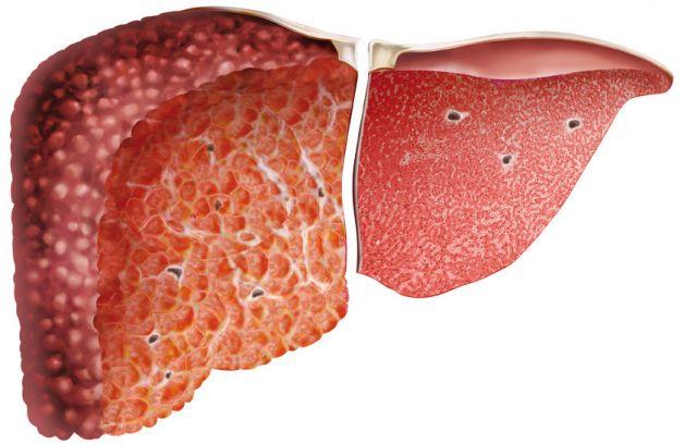 Dita del piede di thrombophlebitis