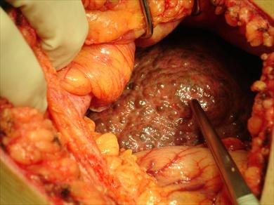 Attività fisiche dopo operazione su varicosity