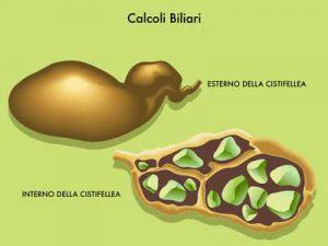 CALCOLI BILIARI 1