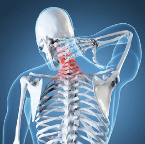 Artrosi Cervicale Cura