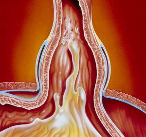 Art of gastro-oesophageal reflux in hiatus hernia