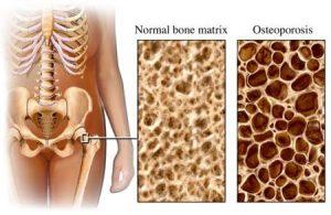 OSTEOPOROSI COP