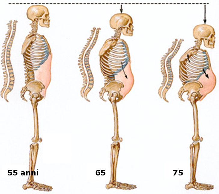 Las medicinas contra la hernia intervertebral