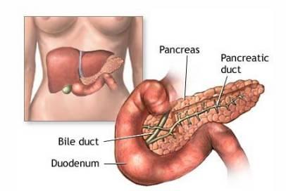 tumore al pancreas stadio finale