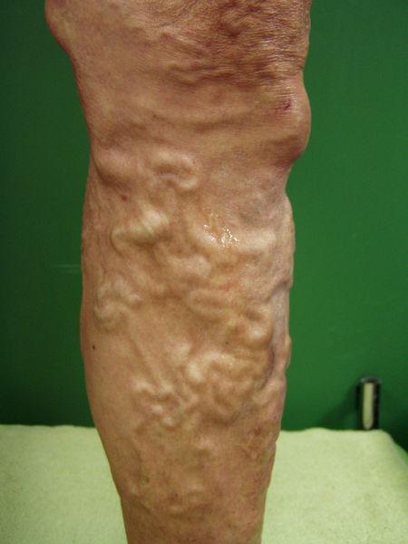 Varicosity di corpi di piccoli sintomi di pelvi