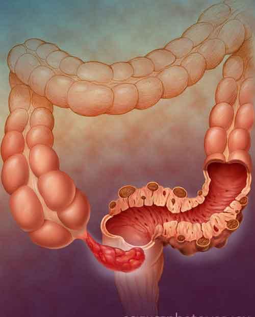 Risultati immagini per tessuto infiammato