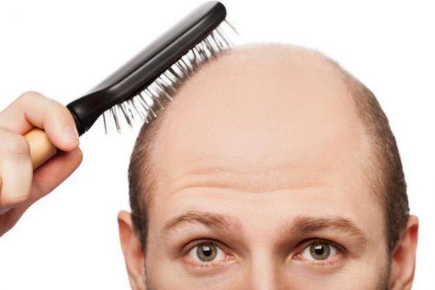 Cura per capelli diradati uomo