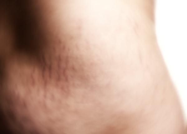 smagliature della pelle