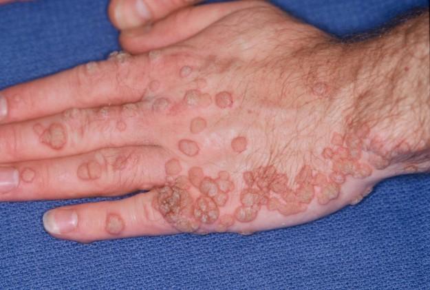 Verruche Tipi E Sintomi Contagio Trattamento Medico Rimedi Naturali E Prevenzione Meteoweb