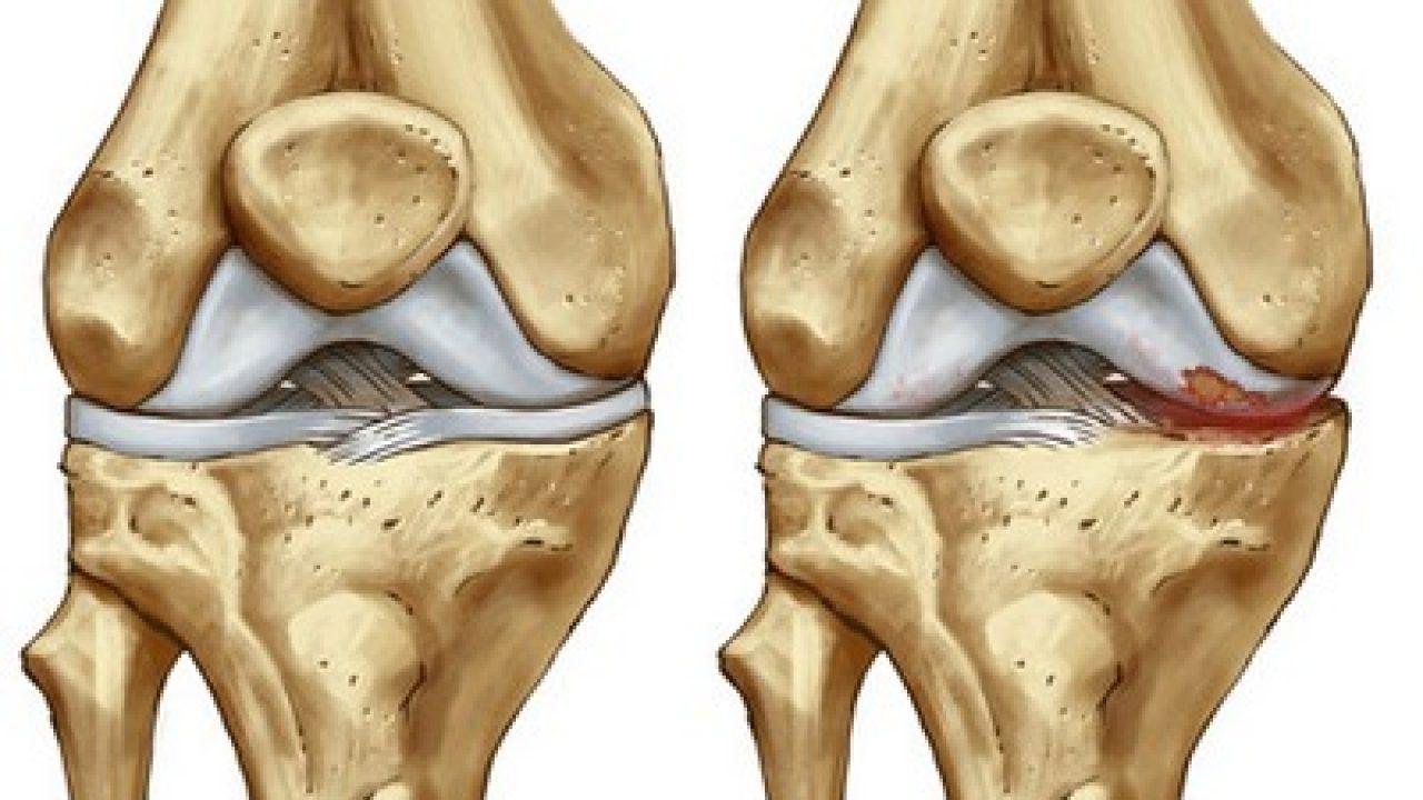 Dolore al ginocchio: la sindrome femoro-rotulea