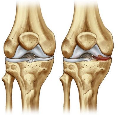 Sintomi della lacrima del menisco allinterno del ginocchio, quali sono...
