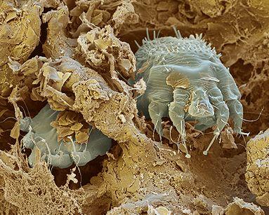 S.o.s acari della polvere: ecco come liberarsene e prevenire la
