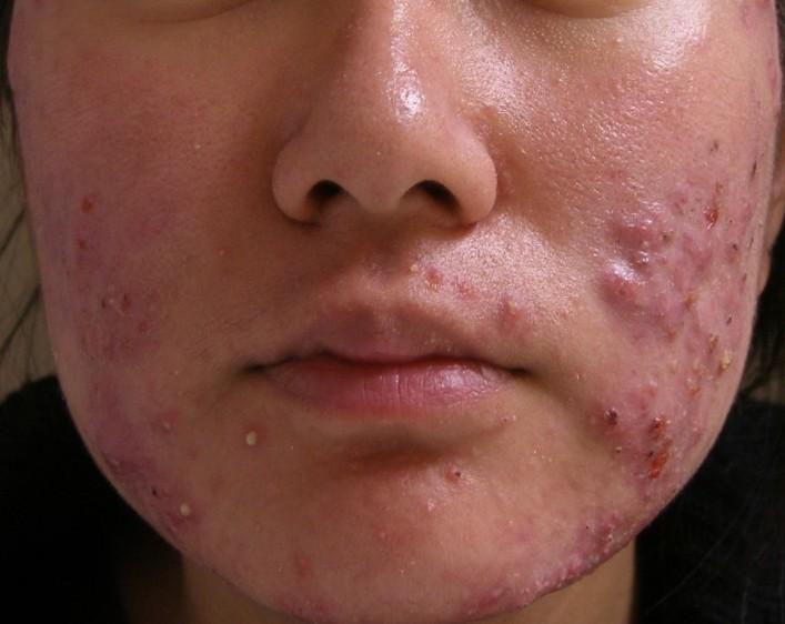 Medicina di acne spagnola