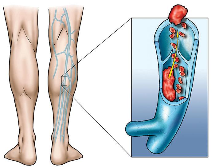 Come togliere la cellulite che sta a varicosity