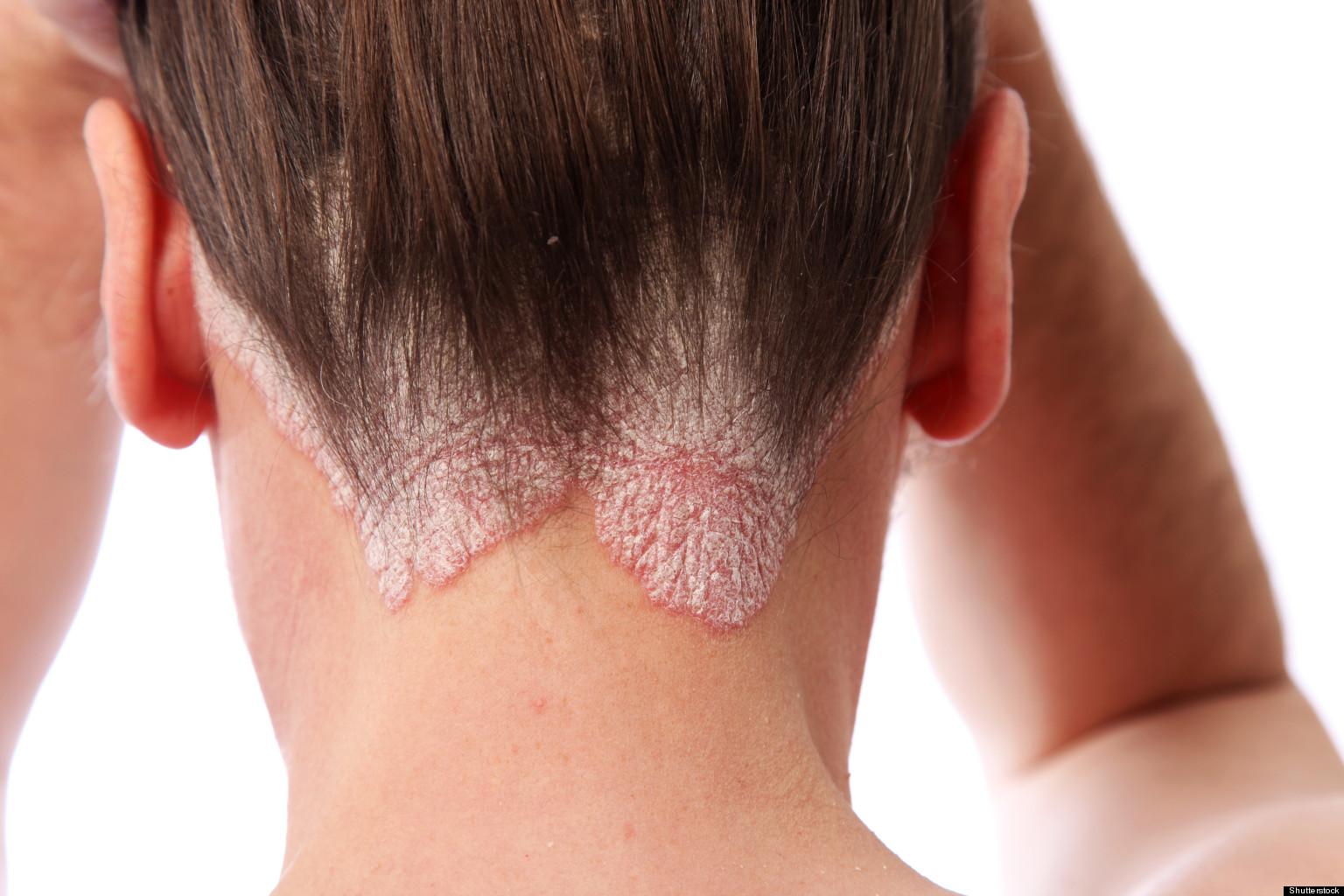 Succo di un chistotel da eczema