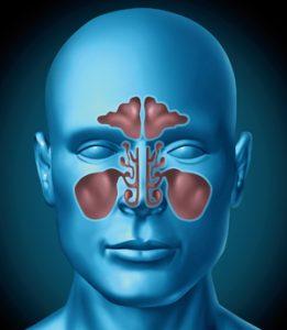 Sinusite cause fattori di rischio sintomi diagnosi for Mal di testa da sinusite rimedi della nonna