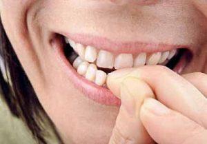 onicofagia-smettere-mangiare-unghie