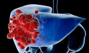 cancro-fegato-aspirina