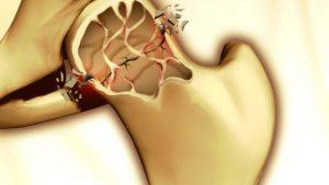 osteoporosi-620x350