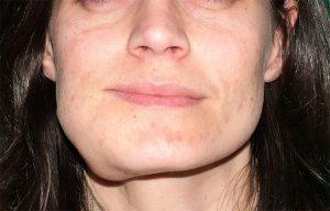viso-paziente-deformato