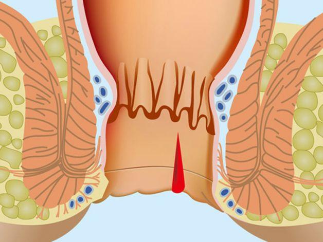 Ragadi anali: cause, sintomi, diagnosi, cura e prevenzione