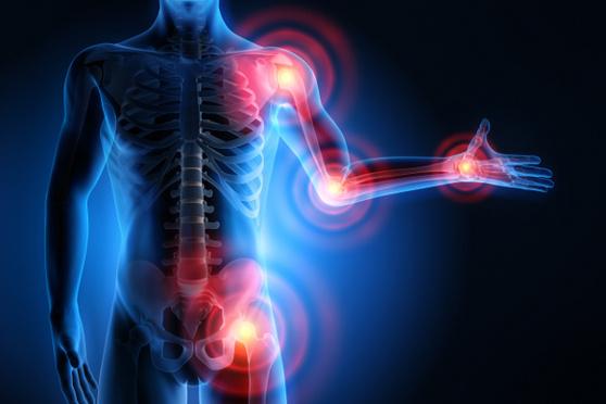 I 10 cibi da evitare se hai l'artrite