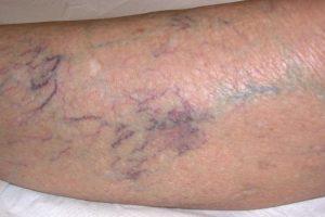 Trombosi di un trattamento di sintomi di vena popliteal