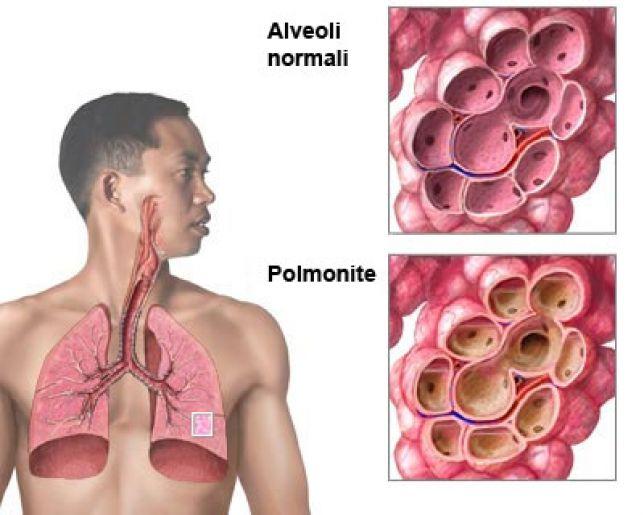 Cina, epidemia misteriosa di polmonite virale: scatta l'allerta negli aeroporti