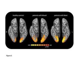 cervello emicrania