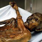 Nello stomaco di Oetzi il batterio dell'ulcera [FOTO]