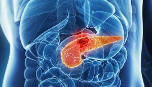 tumore pancreas