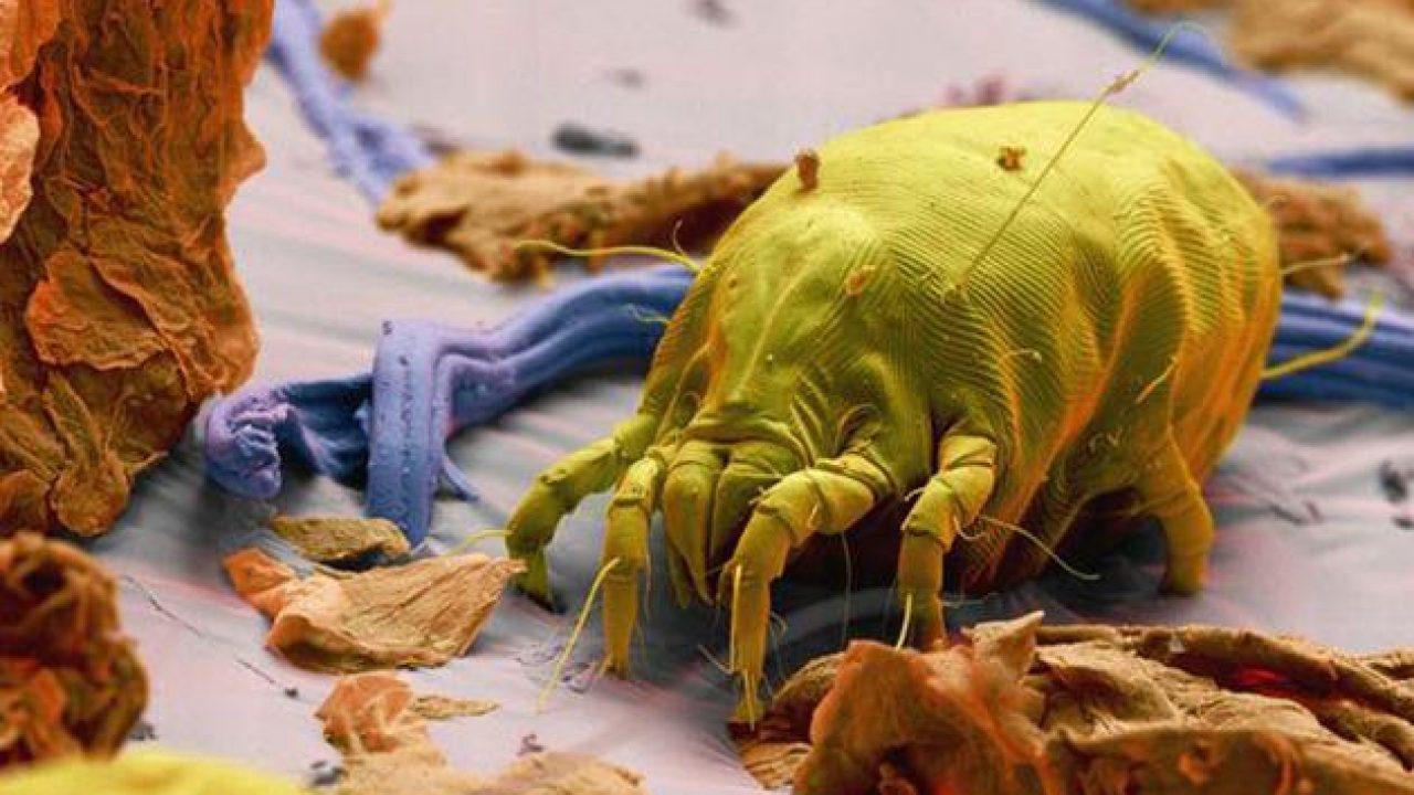 Come Uccidere Acari Della Polvere allergia agli acari della polvere: sintomi, diagnosi, cura e