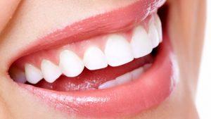 denti bianchi_sorriso