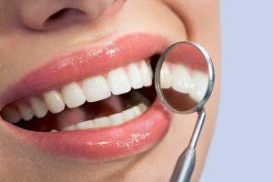 denti bianchi sorriso
