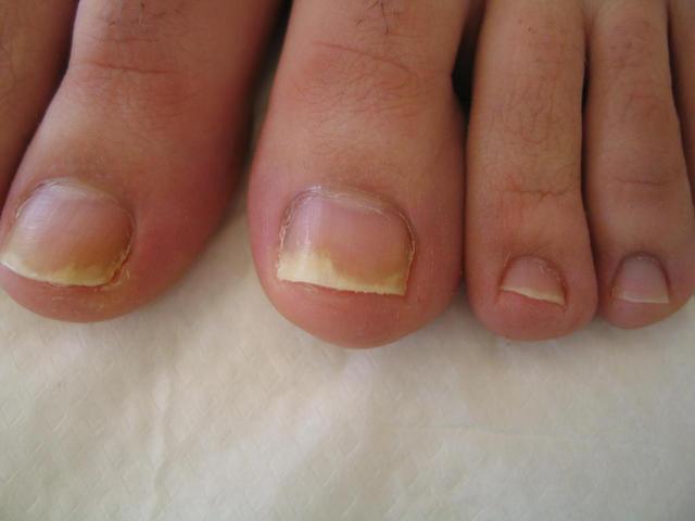 Forum della gente con unghie di fungo