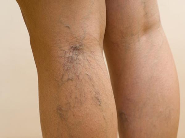 Se varicosity su una gamba cresce