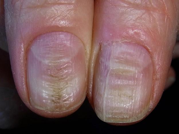 Trattamento di un fungo su unghie di gambe a