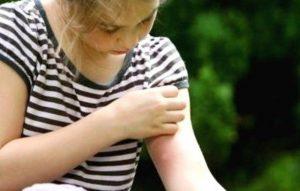 zanzare-bambini