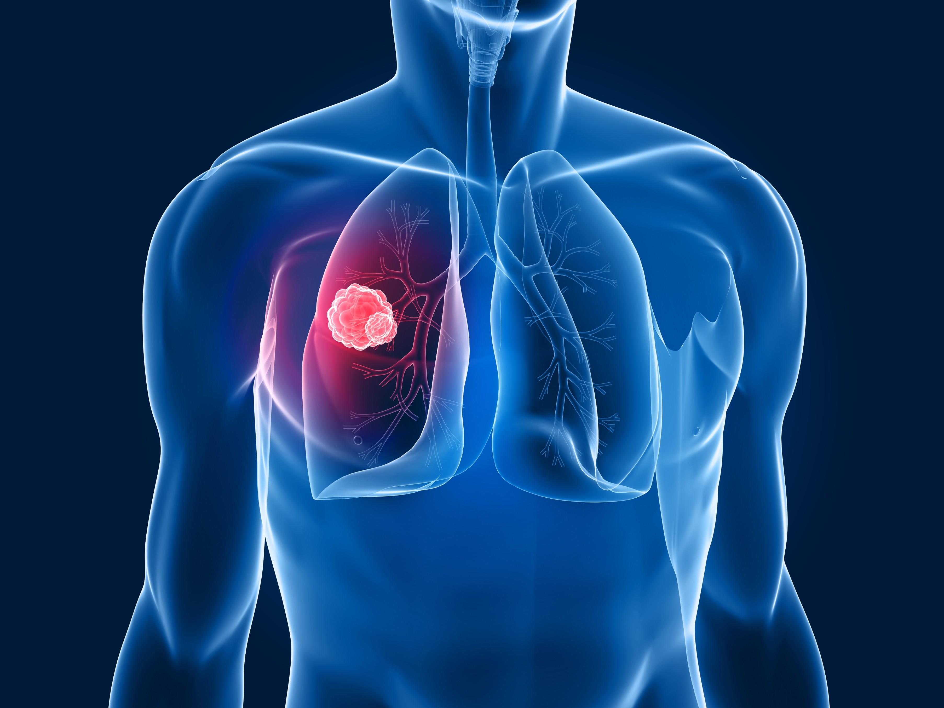 Tumore al polmone: immunoterapia Roche porta a 13,8 mesi la sopravvivenza media dei pazienti